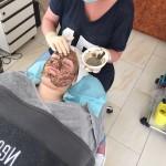 Biopeeling behandeling